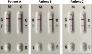 IgM and IgG antibody detection in three COVID-19 patients with RayBiotech's rapid antibody test. The rapid test here detects antibodies to the SARS-CoV-2 N protein. Patient A has IgM antibodies, but not IgG antibodies to the N protein. Patients B and C have both IgM and IgG antibodies to the N protein, but at varying levels. M = IgM. G = IgM. C = Control line, a positive control band that should always be present. T = Test line, presence of a pink-hued band regardless of saturation level indicates COVID-19 infection. S = Sample bed where sample is first placed.