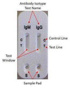 The different part of lateral flow technology uses to detect COVID-19 IgM and IgG antibodies.